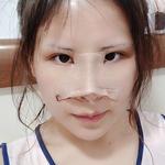 一直以来我都对自己的鼻型不太满意,现在垫个鼻子,做个双眼皮都是小手术了,...