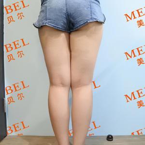 【常州美贝尔吸脂瘦大腿术后87天】术后87天了,终于不用再穿瘦身裤啦~现在的腿型已经改变了很多,不再是以前的大象腿了,感...