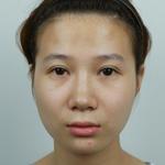 下颌角、颧骨、皮质骨切除、颊脂垫取出