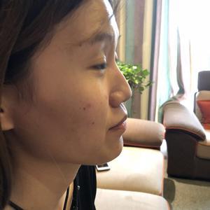 玻尿酸垫鼻基底