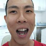 自锁托槽牙齿矫正