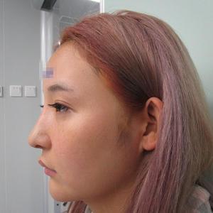 成都素美医疗美容(肋软骨隆鼻)