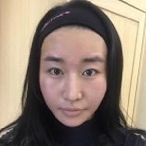 梦露吸脂瘦脸