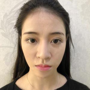 硅胶鼻修复