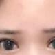 鬼知道我的眼睛经历了什么从首次双眼皮失败到二次修复,到最后一次来美安修复脂肪填充其实...
