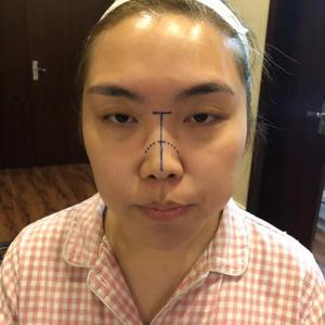 鼻部综手术