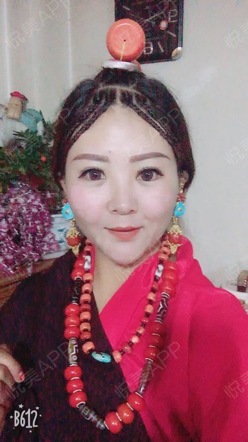 【眼综合】——-——周鹏起医生两个多月了,因为我是藏族的,所以大家看我穿的衣服也不要惊讶啦。眼睛恢复的很好,也一直在用祛...