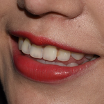 我在金圣口腔的牙齿变美之旅