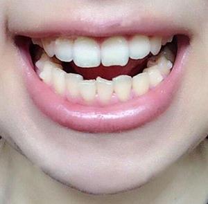 過了好幾個月了,越發的整齊了,有沒有覺得我的臉瘦了一些呢,都說矯正牙齒能改變臉型,看來是真的了,隱形牙套確實方便很多了,...