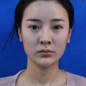 下颌角整形-鼻综合-眼综合
