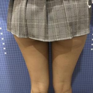 目前的状况是腿部已经很瘦了,大长腿已经实现了,之前我的腿就是大象腿觉得特别尴尬,连我自己都看不过去了呢,后来进过仔细斟酌就做了腿部吸脂,很幸运自己瘦腿成功,而且皮肤非常精致,没有出现松弛现象,大长腿应该是所有女生都想要的吧,几张照片以对比完全就是很鲜明,身材这么好真的是想买什么好看的衣服可以随便穿,不用再担心赘肉之类的,很开心。