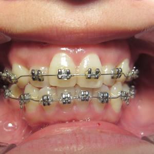 初戴牙套后会有1-2周的适应期,每次复诊加力后,牙齿可能会产生轻微的疼痛,这种疼痛通常都是能忍受的,疼痛一般持续2-3天...