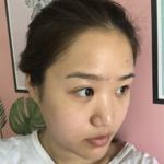 瘦 脸 针