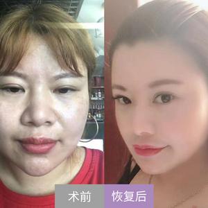 【北京亚韩医疗美容】——V塑加脂肪精雕填充案例对比