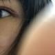环境挺好的 服务态度也挺好的就是我双眼皮瘢痕增生期肿的有点厉害 有点小疼~医生手法总体来讲 还不错!