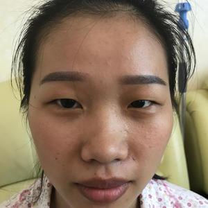 眼部综合 异体骨隆鼻