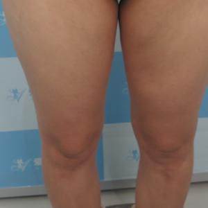 美体塑形:大腿吸脂日记分享