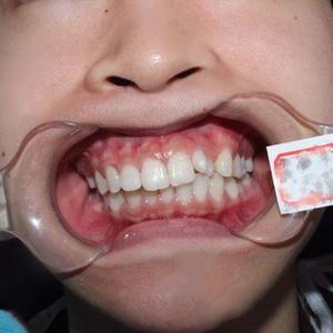 时间过得真快,已经两百天了,我和同事相处的不错,口腔里的牙齿也相处的越来越