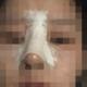 终于做完隆鼻手术了.医生很有耐心的,为了达到满意的效果,改了好几次,护士都说给我做一个隆鼻手术...