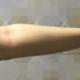 哈喽,大家好,做完手臂吸脂10天了,趁着没有穿塑身衣赶紧拍张照片看看效果,虽然还有点肿,但是手...