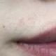 我第一次脱毛 体验选择了脱唇毛,脱的唇部干干净净的,效果棒棒哒,朋友推荐我来这做的,整个脱毛过程很...