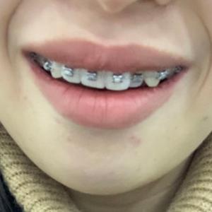 今天拔了右边两颗牙,一共拔四颗,我是分两次拔的,拔完晚上拔掉的牙旁边两颗牙有点酸疼,带牙套的第二天,酸痛的不行,牙套还磨...