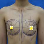 自体脂肪隆胸 脂肪丰胸安全吗