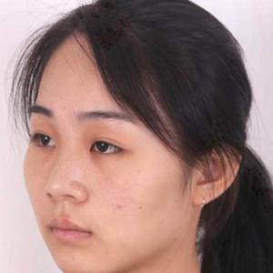 综合隆鼻术