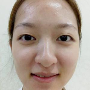 【诺嬄美眼综合修复】