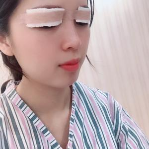 厦门安黛美眼+鼻综合