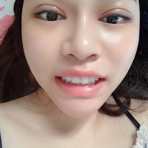 牙缝小了特别多,效果特别明显,有没有!换新牙套基本都不疼,就是第一天感觉稍微有一点儿紧,完全不疼不难受我大门牙中间的牙龈...