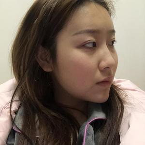 最近看到有的宝宝问我关于瘦脸的问题,主要就是纠结两个项目,一个是瘦脸针,一个是我做的面部吸脂,今天我就来跟各位宝宝们缕一...