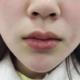 我的嘴皮子很薄,一直很向往那种嘟嘟唇,化妆画出来挺不好画的,于是求助了菲林,骆主任给我打了一针,好喜...