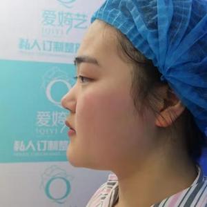 鼻综合术后完美蜕变