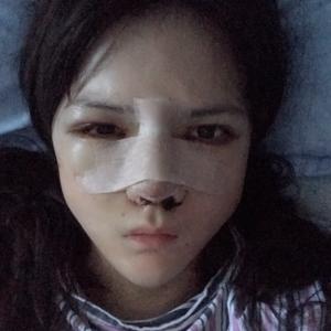 鼻整形肋骨鼻综合术后日记