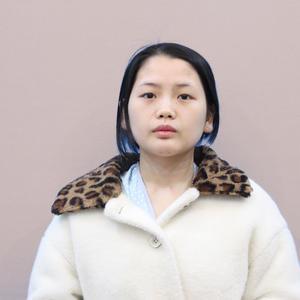 【耳软骨隆鼻】杭州甄美做的鼻子是那种小翘鼻,形态恢复有一年多的时间了,很满意现在的形态的,我感觉自己恢复得非常快。在过去的这段时间中,我一直都有在忌口。而且在恢复期也不要着急。