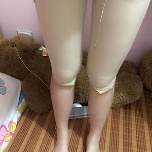 腿吸脂+腰腹吸脂第一天,昨天到了医院来做吸脂手术,是朋友介绍的,到了医院觉得环境非常非常的好,就是感觉什么都是新的,整洁...