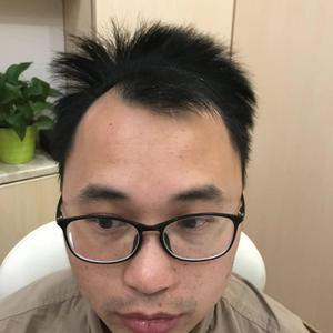 感觉越来越好了头发都长出来了。之前的植发的皮肤留下红印也都消失的差不多了~一步一步的改变,期待完美的效果~