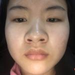 综合隆鼻手术