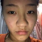鼻部综合整形手术