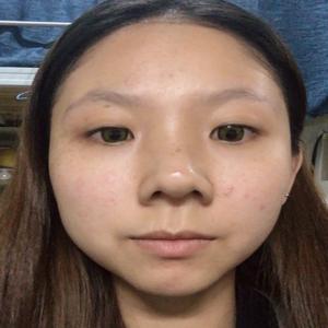 福州爱美尔假体隆鼻 鼻综合 持续更新