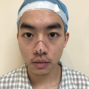 全鼻整形、鼻头重塑术