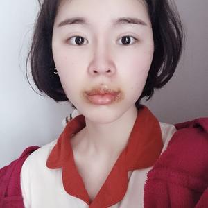 现在的嘴巴真的是肿的呀,自己都不想看,还是很疼的东西是根本不想吃因为张嘴很困难,唯一觉得开心点的是唇形感觉还是不错的,虽...