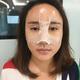 虽然看起来还有点肿,没有完全消掉,但整个面部都好饱满,特别是额头,希望消肿之后不要被吸收才好。