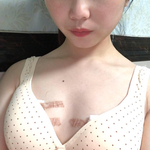 脂肪隆胸术