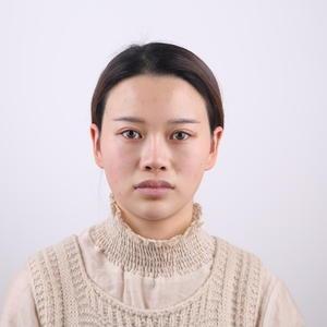 面部改造-鼻综合+自体脂肪填充