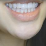 苏州康美牙齿矫正