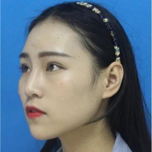 硅胶隆鼻子
