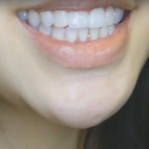 终于可以矫正牙齿了,所以都有会认真的在保养、刷牙什么的,刷牙流程好复杂啊,有时候刷牙要花上5分钟呢,现在牙齿变整齐了一些...