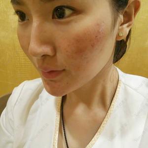 现在皮肤的感觉很舒服了,仔细感觉一下的话,脸部还是有点小粒粒的,跟闭合粉刺似的。恢复比我想象中快很多。这几天一直都是自己...